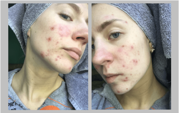 My Experience on Accutane (Isotretinoin) With Before and After Pictures   Until The Very Trend