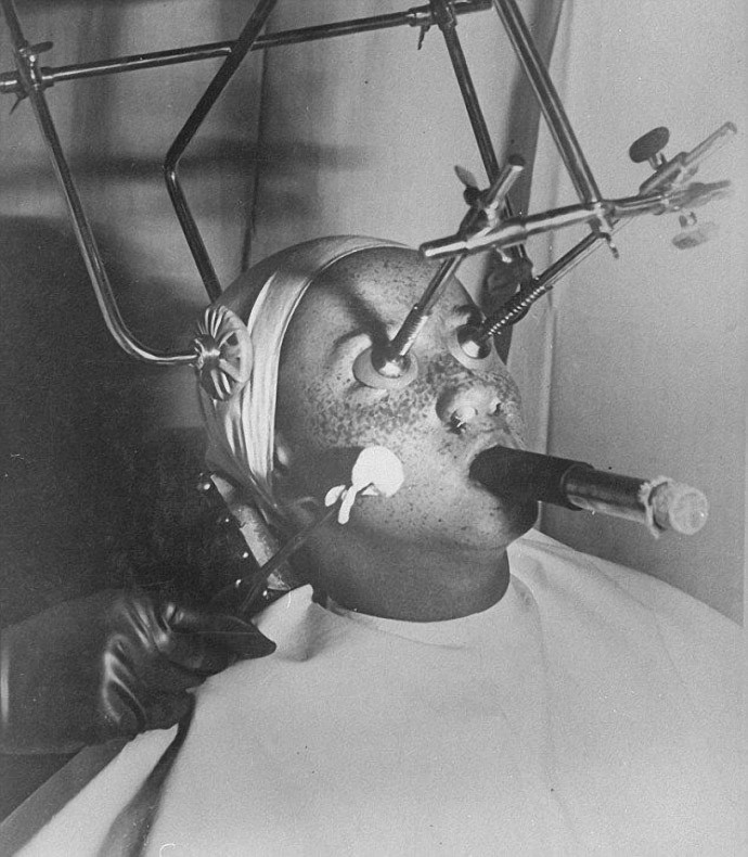 Procedure of removing freckles with carbon dioxide, 1930s.