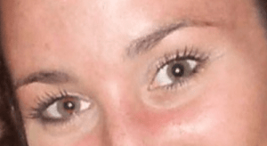 Brows After Electrolysis
