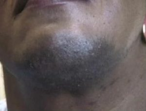 Chin Before Electrolysis