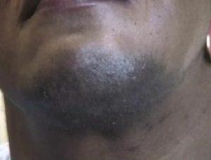 Chin Before Electrolysis