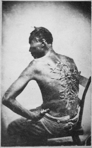 """""""Overseer Artayou Carrier whipped me. I was two months in bed sore from the whipping. My master come after I was whipped; he discharged the overseer."""" The very words of poor Peter, taken as he sat for his picture. Baton Rouge, Louisiana. ca. 1861 - ca. 1865 (165-JT-230)"""