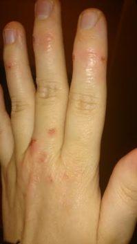 Left hand close up 18 months 25 days 4-28-16