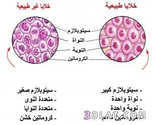 ما الفرق بين الورم الحميد والخبيث