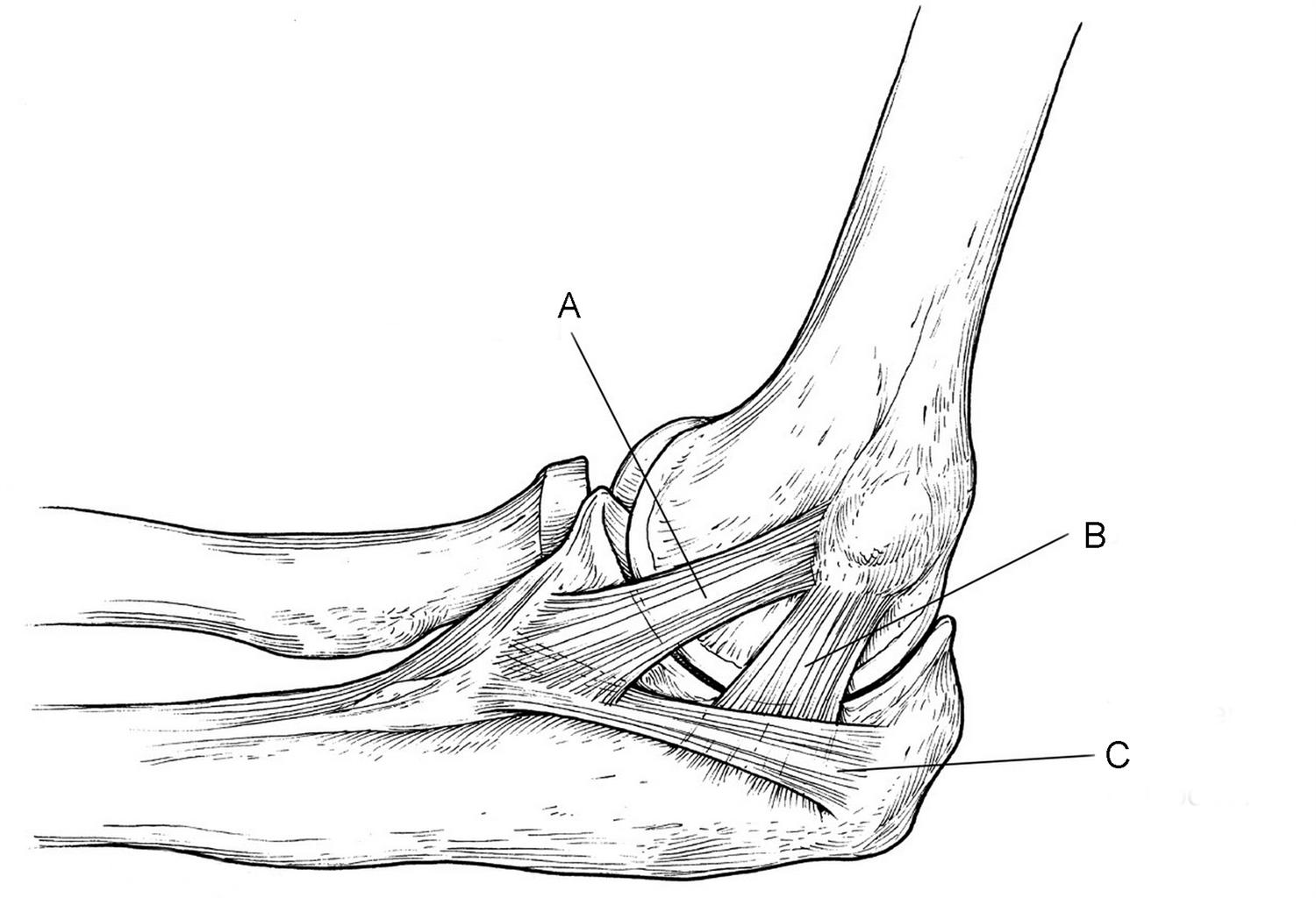 Elbow Stiffness And Contractures