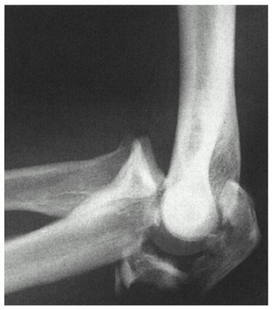 Olecranon Fractures - Trauma - Orthobullets