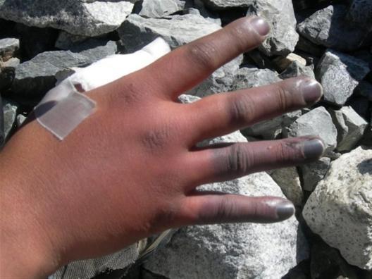 Frostbite - Hand - Orthobullets