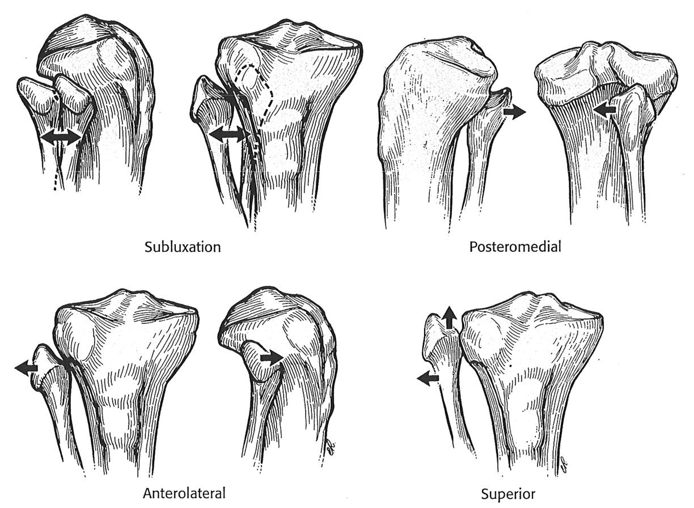 Proximal Tib Fib Dislocation