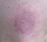 """""""Bulls-eye"""" Lyme Disease rash"""