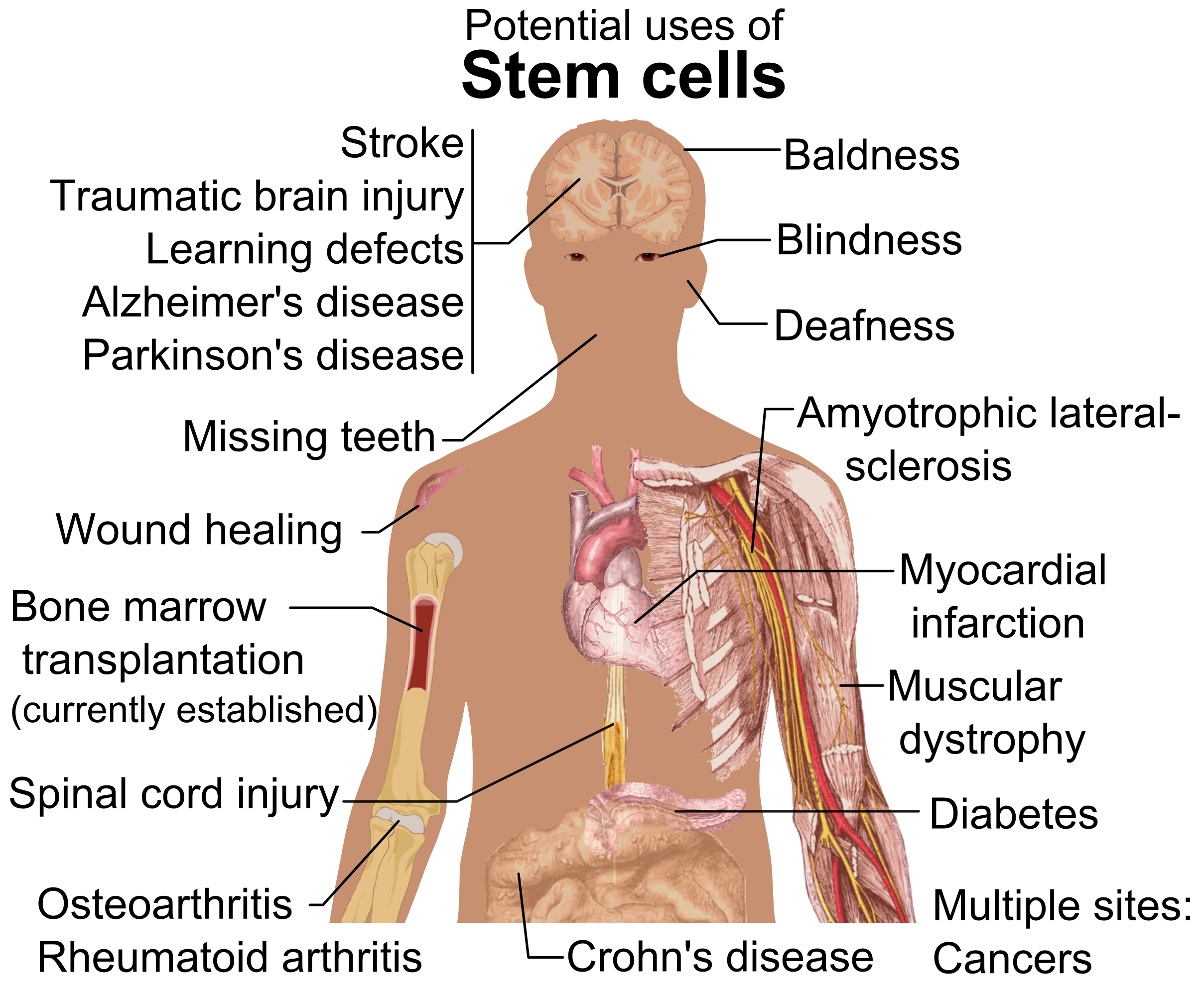 Stem cell treatments.png