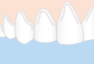 Die Zähne pflegen, für weisse Zähne