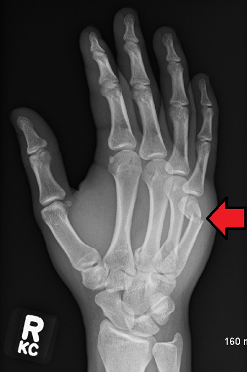 xray showing a fracture of the neck of the 5th metacarpal bone of the hand