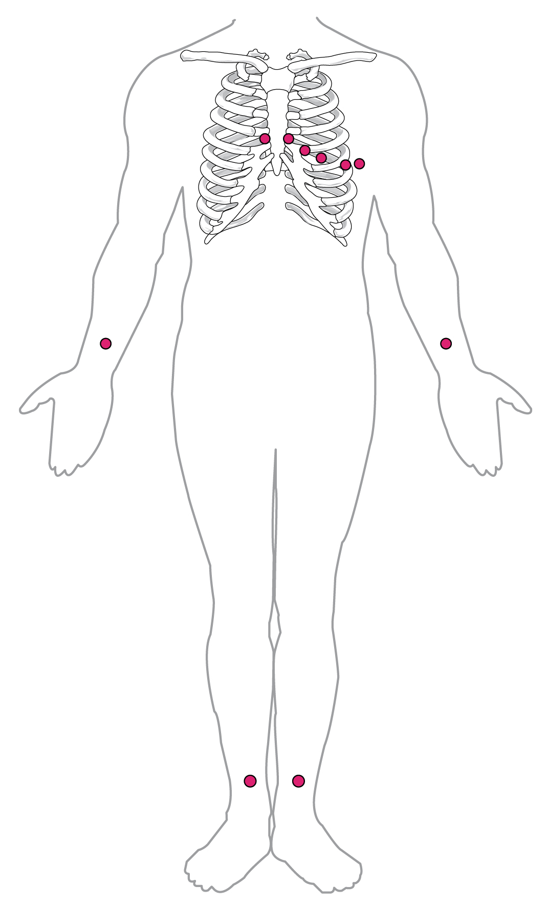 Electrode Ecg Placement