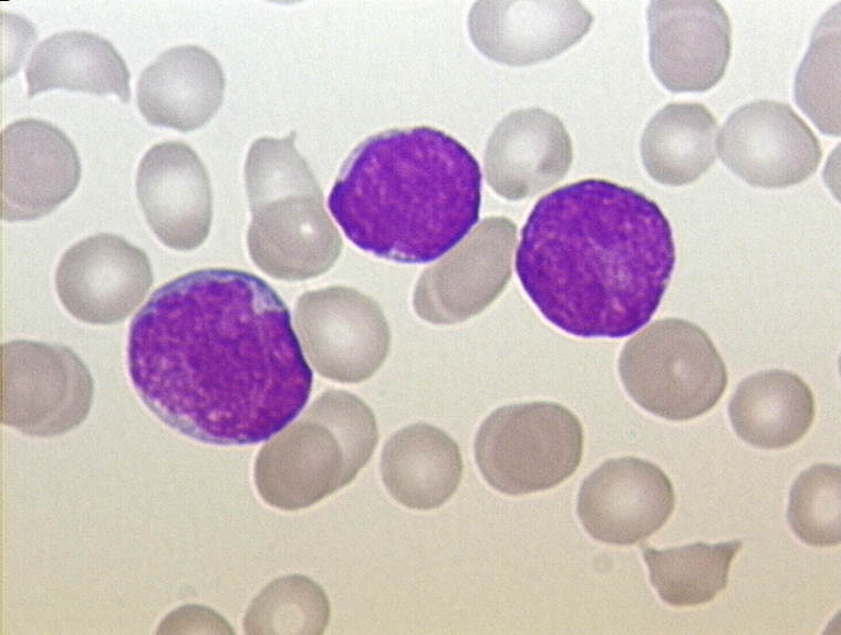 File:ALL - Peripherial Blood - Diagnosis - 01.jpg