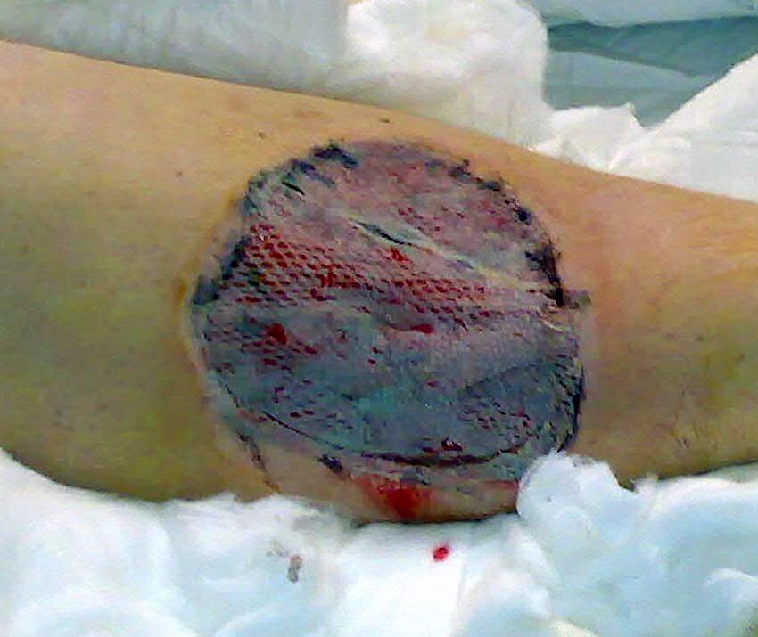 Skin Grafting Wikiwand