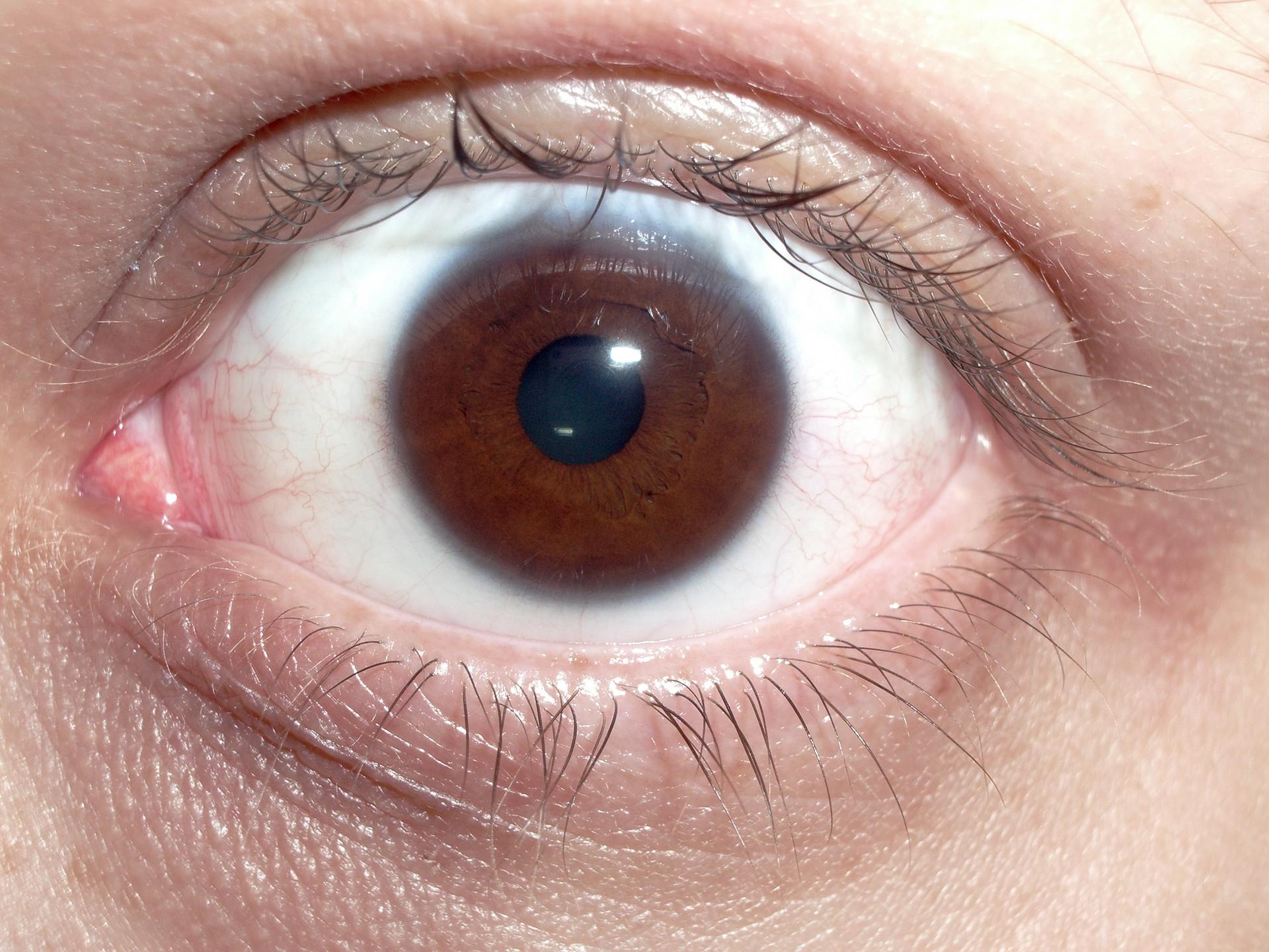 File Brown Human Eye