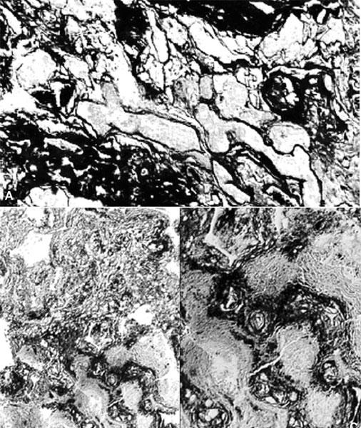 Immagine istologica del tessuto polmonare con enfisema irregolare e noduli