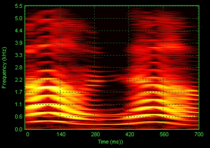 English: Acoustic spectrogram of a young girl ...