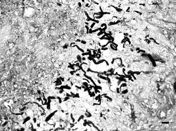 File:Pythiosis hyphae.jpg