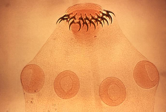 Taenia solium, cacing pita parasit pada Babi dan cacing parasit pada manusia