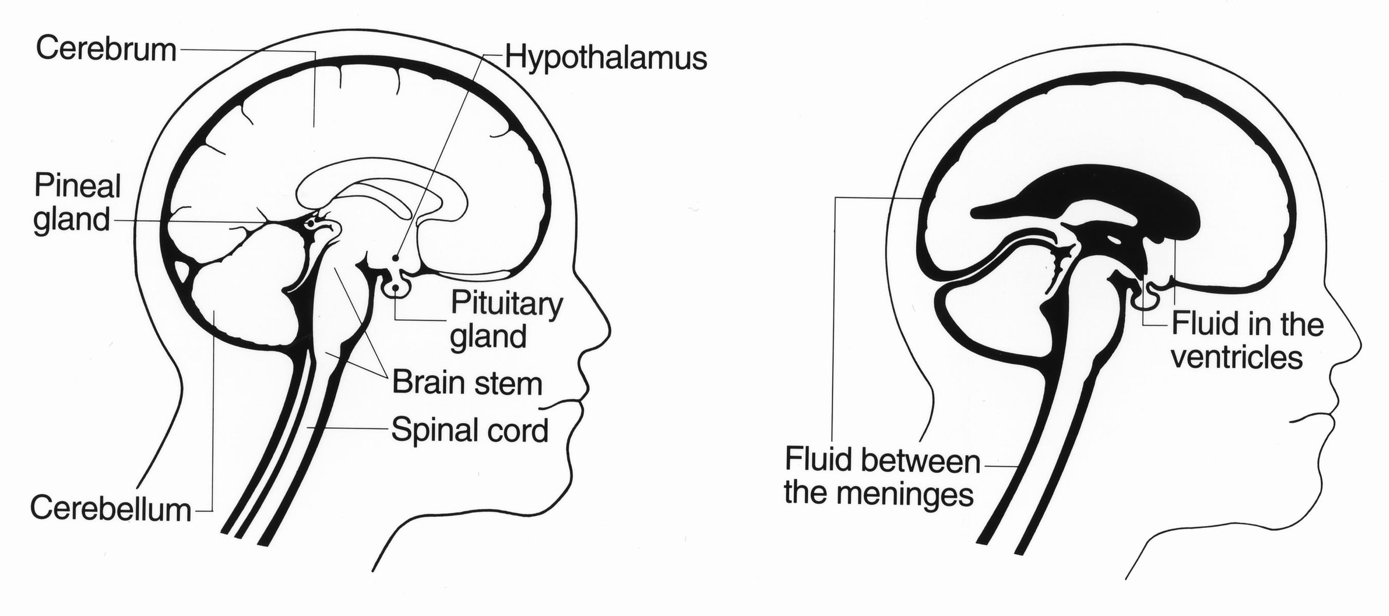 File Brain