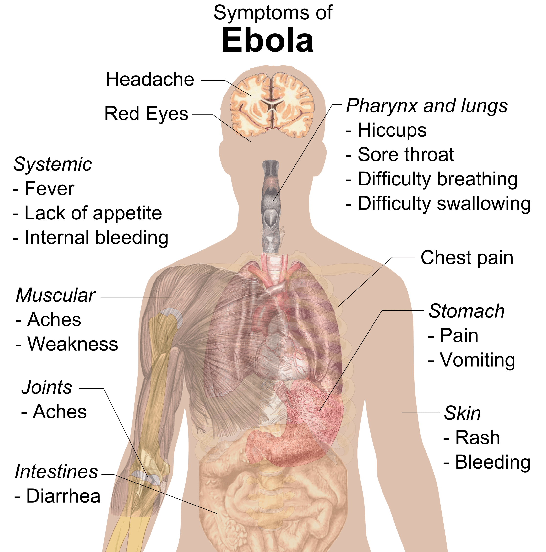 https://i2.wp.com/upload.wikimedia.org/wikipedia/commons/4/4a/Symptoms_of_ebola.png
