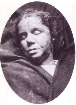 Victorian mortuary photograph of murder victim...