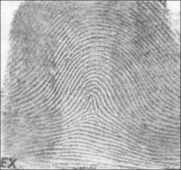 Tented arch patterned fingerprint