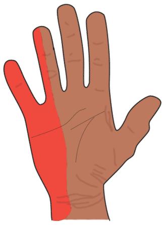 ulnarisrinnen syndrom wikipedia