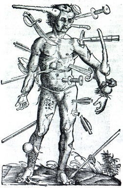 Image of Wound Man taken from The Method of Cu...