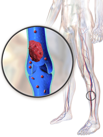 Резултат слика за Vein Thrombosis
