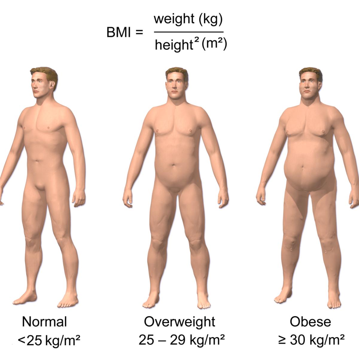 El cerebro de las personas obesas es 10 años más viejo...