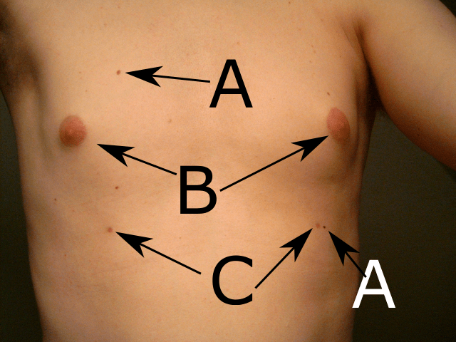 Supernumerary nipples. (Third and fourth nipple of male Scandinavian). A - regular birthmark. B - regular nipple. C - Supernumerary nipple