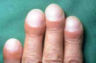 File:Clubbing of fingers in IPF.jpg