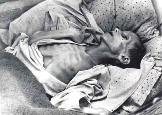 Kharkov, Ukraine, in 1932. Starving child.
