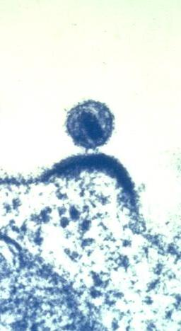 HIV Budding Out of an Immune Cell (6813326451)