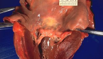 Rheumatic heart disease, gross pathology 20G0013 lores.jpg