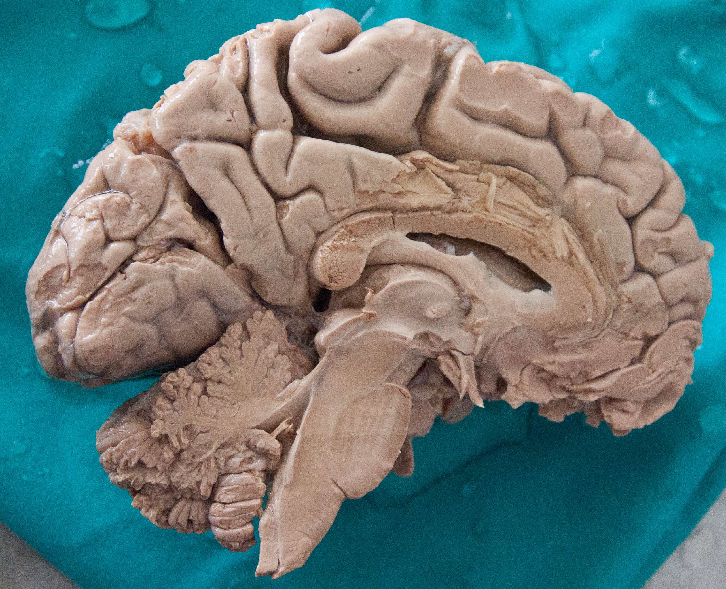 File Human Brain Dissected