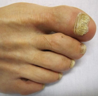 extreme nail fungus infection, how to get rid of toenail fungus, treatments for nail fungus