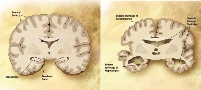 Image result for alzheimer brain