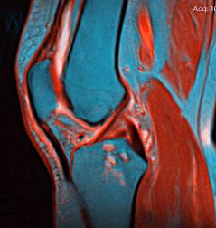 Knee MRI, polvikipu