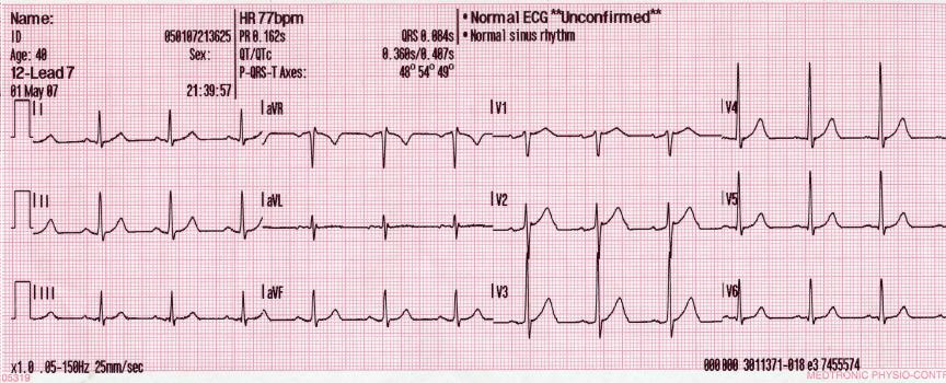 Cardiovascular Technologist
