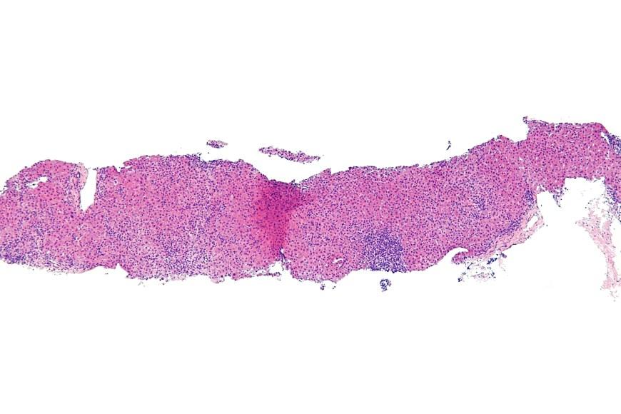 Hepatitis Of The Liver