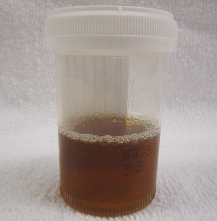 Image result for tea coloured urine