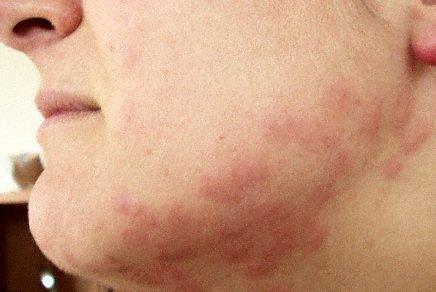 File:Bedbug bites.jpg