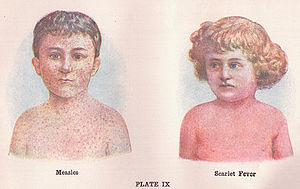 English: Illustrations of children with Measle...