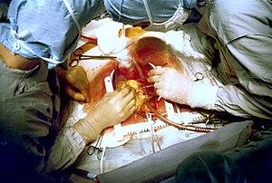 http://fmp.cit.nih.gov/hi/ Title: Coronary art...
