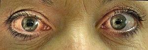 English: Acute angle closure glaucoma of the r...