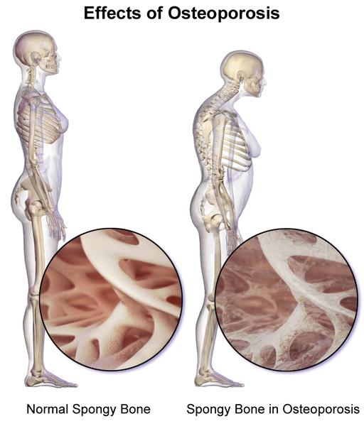 Osteoporosis 02
