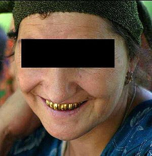 29px A Tajik woman with gold teeth